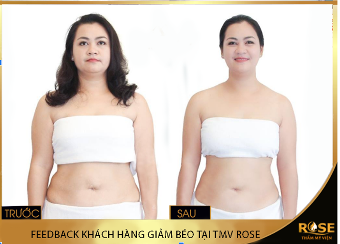 Phương pháp giảm béo hiệu quả tại thẩm mỹ viện Rose Cầu Giấy - Ảnh 1