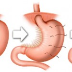 Gastric Sleeve Plication - Bariatric Surgery Procedures in Mexico