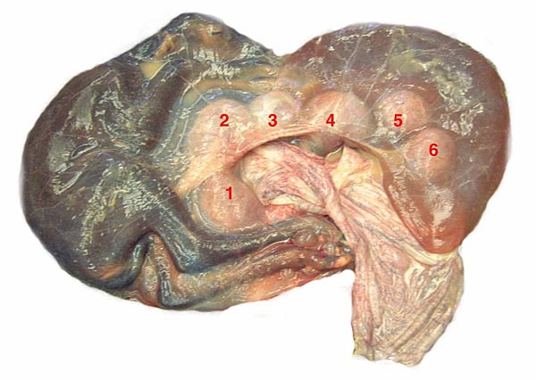 Sambar deer fetus within its amnion