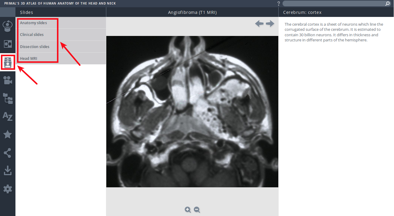 Primal's 3D Atlas of Human Anatomy of the Head and Neck - Mozilla Firefox_059.png