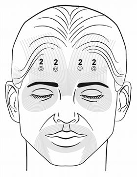 Botox Training Frontalis Injection Pattern
