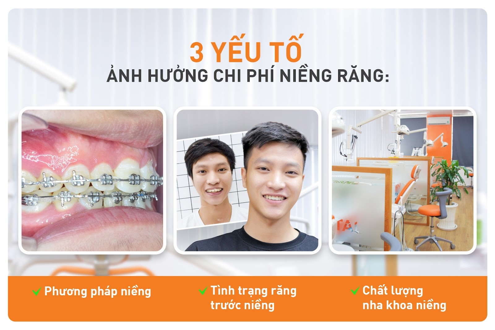 lý do niềng răng giá cao
