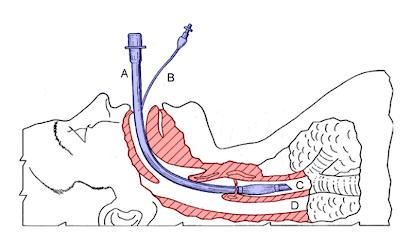 Figura ilustrativa da INTUBAÇÃO TRAQUEAL