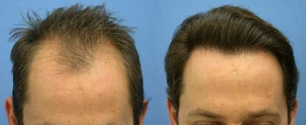 Saç Ekimi öncesi ve sonrası fotoğrafı