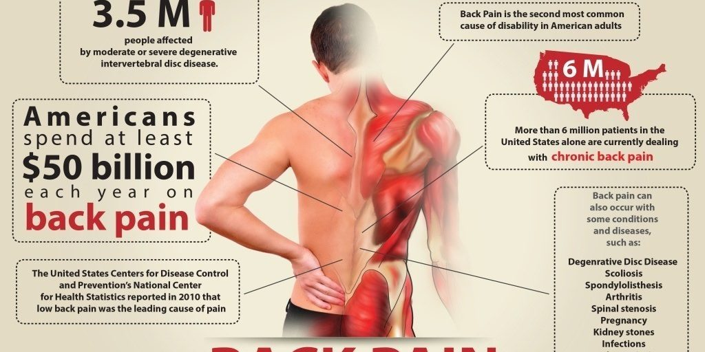 This illustrates how 40 million working Americans suffer from chronic lower back pain