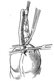 Ligadura da artéria apendicular e exérese do apêndice. Retirado de: Técnica Cirúrgica: Bases Anatômicas, Fisiopatológicas e Técnicas da Cirurgia (7)