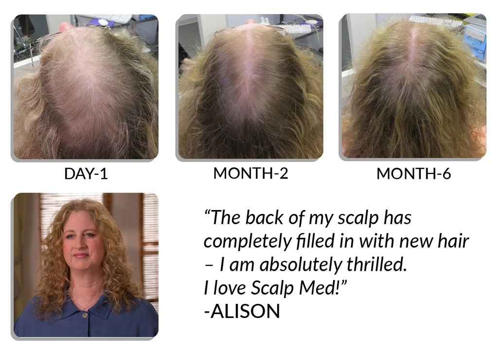 Scalp Med before and after