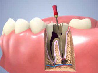 Bọc răng sứ có cần lấy tủy không - khi nào thì cần lấy? 1