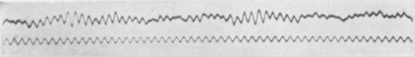 Imagen: Primer EEG del cerebro humano, realizado por Hans Berger en 1924.