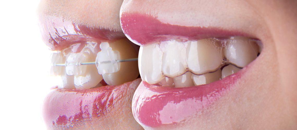 The Latest In Teeth Straightening – Invisalign Service