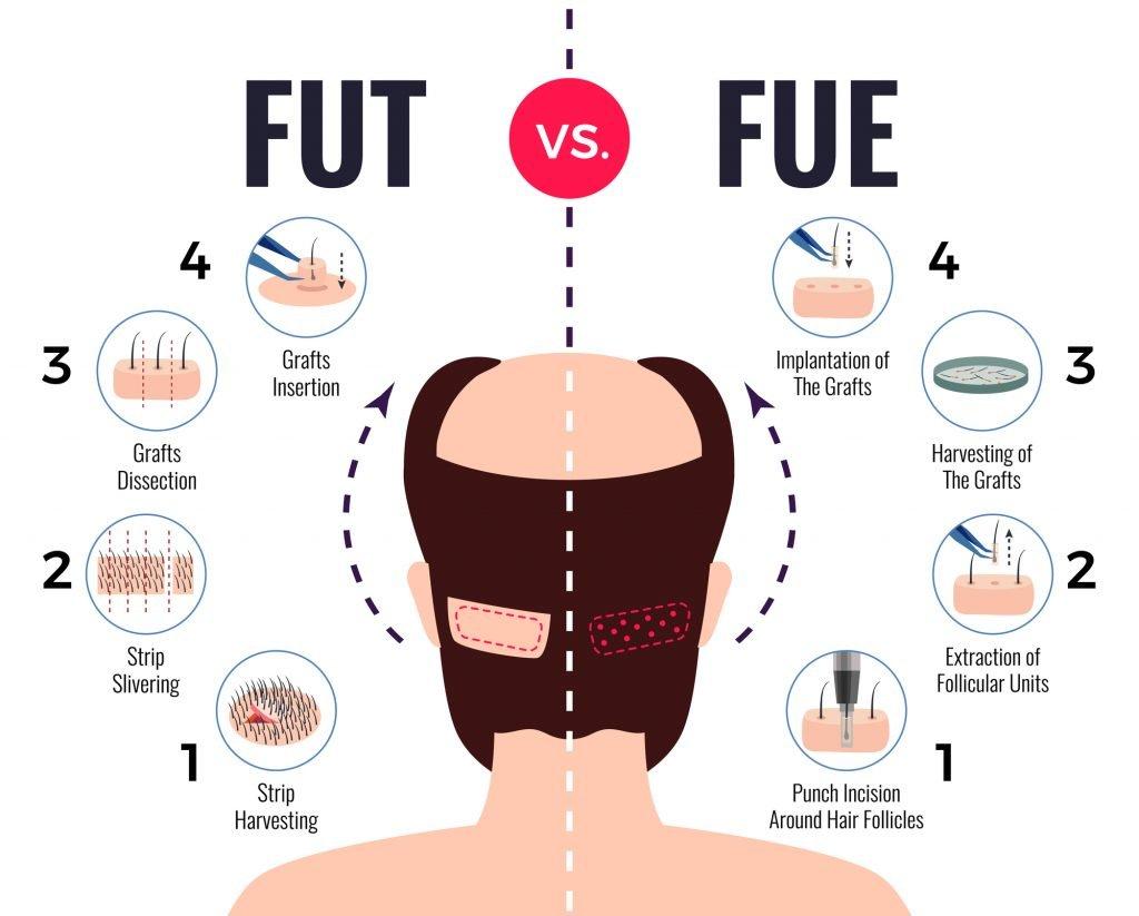 hair transplants turkey fue vs fut