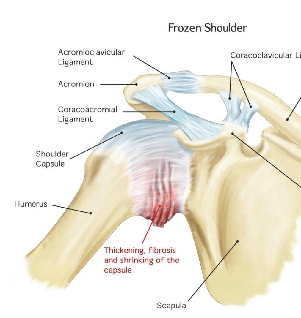 Anatomy image of frozen shoulder