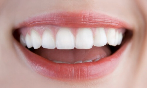 Top 10 sản phẩm làm trắng răng hiệu quả an toàn nhất hiện nay 2