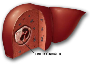 liver_cancer.jpg