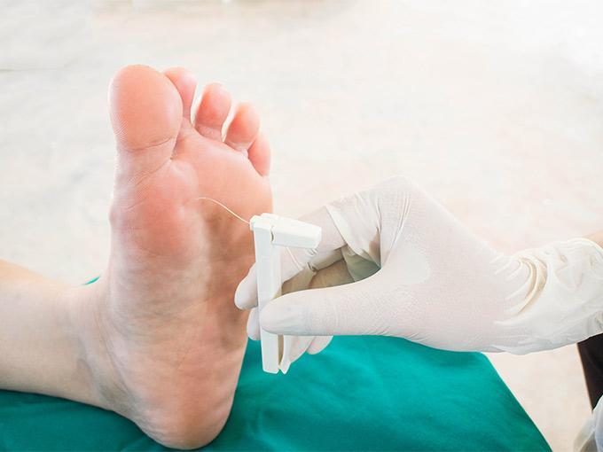 Ein Arzt testet, ob das Schmerzempfinden am Fuß durch eine mögliche Polyneuropathie vermindert ist,