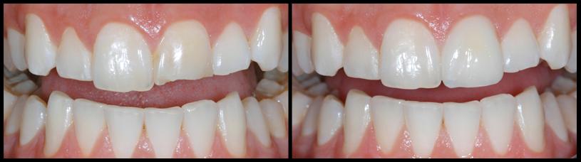 Trám răng mẻ và những điều cần quan tâm khi bạn thực hiện