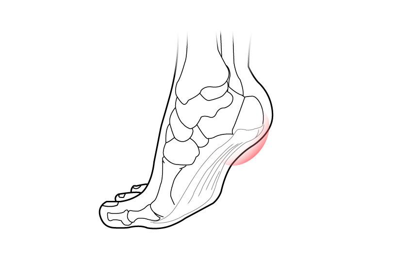 Diagram of foot demonstrating area affected by Plantar Fasciitis