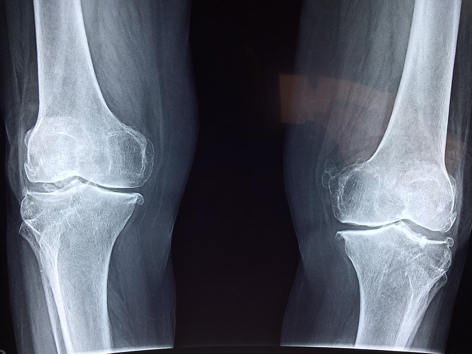Knee, X-Ray, Medical, Anatomy, Skeleton, Bone