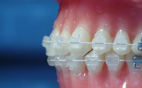 Niềng răng sứ giá bao nhiêu tiền là hợp lý - Nha Khoa Quốc Tế Bally