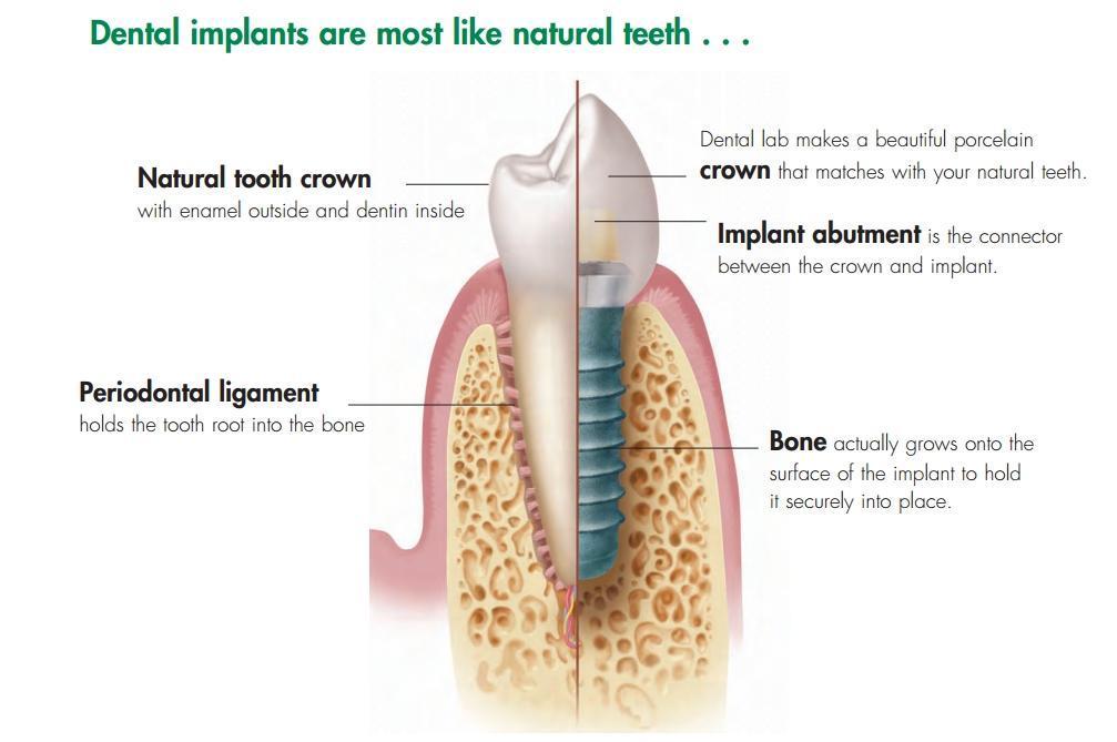 http://www.carlyledentistry.com/wp-content/uploads/2013/12/Dental-Implants.jpg