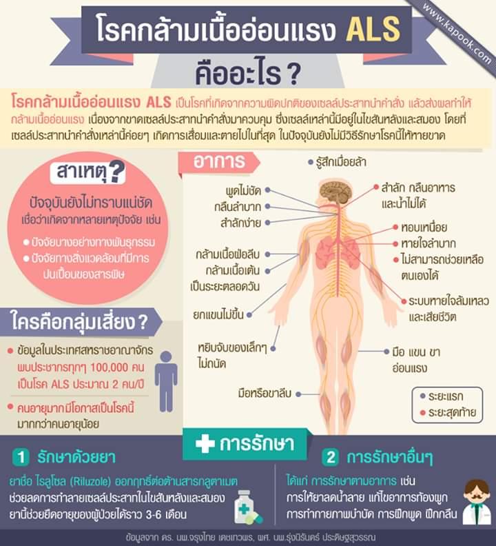 โรคASL โรคเอแอลเอส