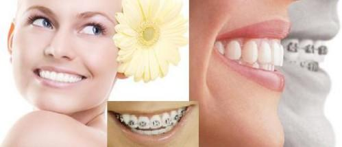 Niềng răng Invisalign có tốt không có đau không?