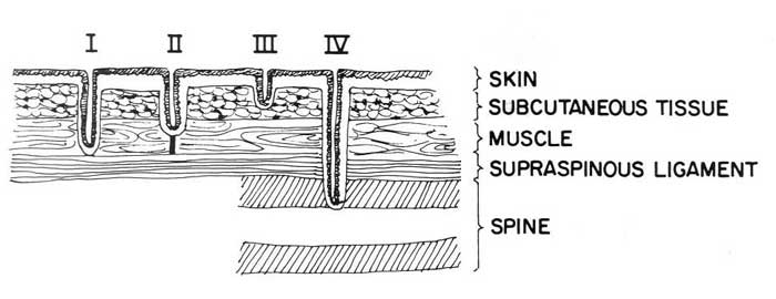 Classes of dermoid sinus. Class I, sinus extends to the supraspinous ligament where it is attached
