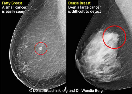 Difference between dense breast and normal breast tissue.