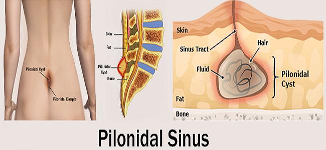 Pilonidal-Sinus