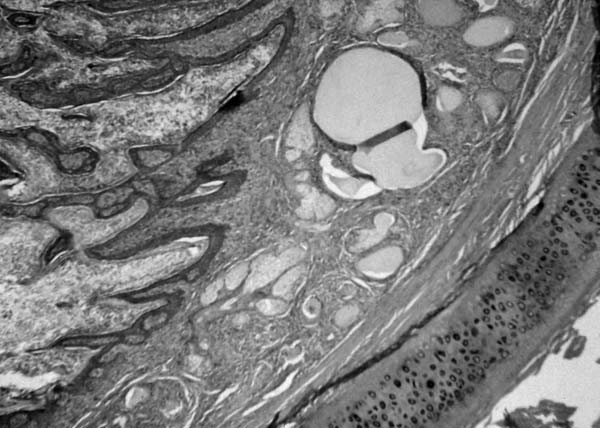 Histopathologic photomicrograph of a transverse section of an ear canal in a dog with otitis externa