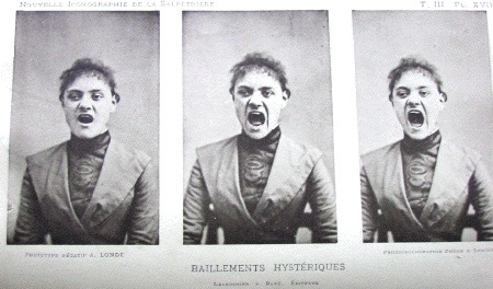 The 5 Strangest Treatments for Mental Illness Throughout History