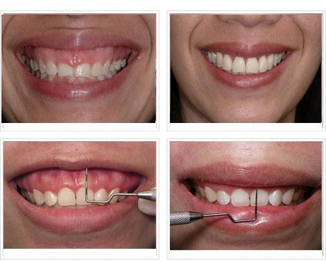 Các phương pháp điều trị cười hở lợi hiệu quả nhất - Nha khoa Bally 1