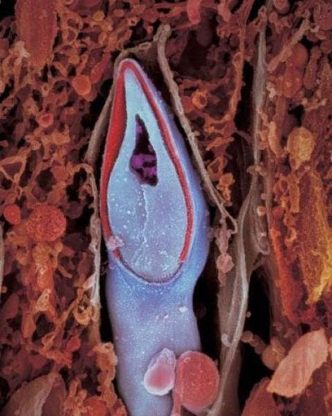 spermatozoid_in_detaliu.jpg