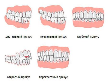 raznovidnosti-nepravilnogo-prikusa-zubov.jpg