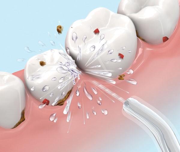 Lấy cao răng mất bao nhiêu thời gian và có ảnh hưởng tới răng không