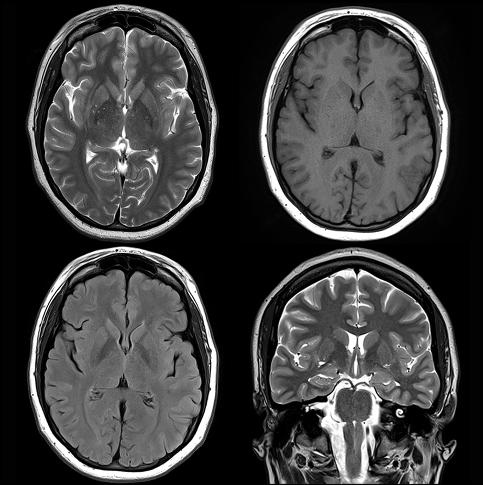Imagen: distintos modos de imagen por RM (tres vistas axiales y una coronal).