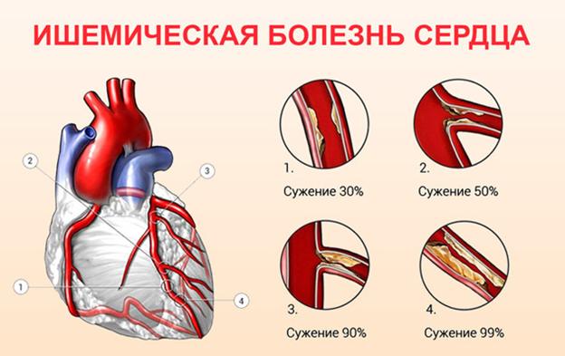 Диагноз акс сердца