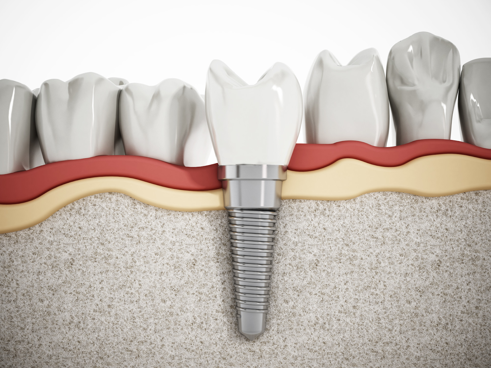 Dental Implants 101: What Is a Dental Abutment?