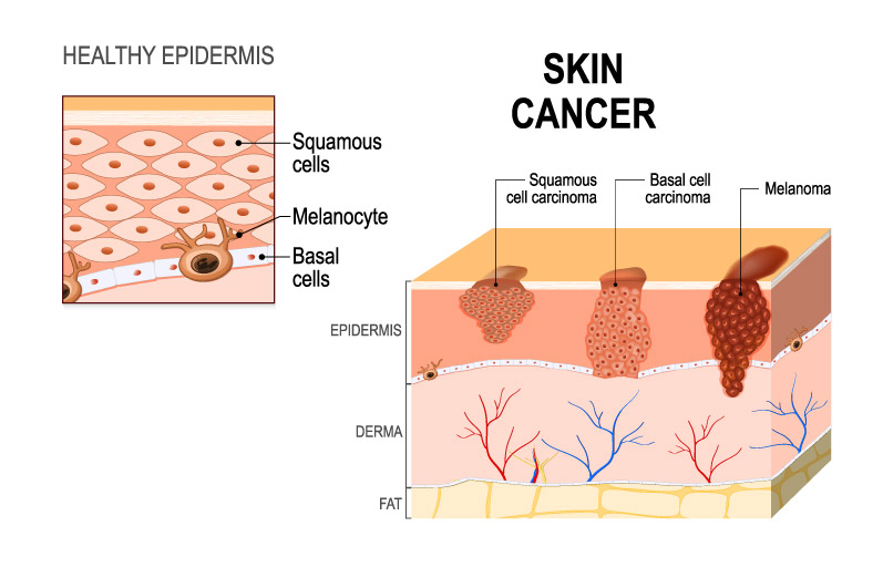 What Is Skin Cancer? & Signs, Symptoms, Etc. - Carecover
