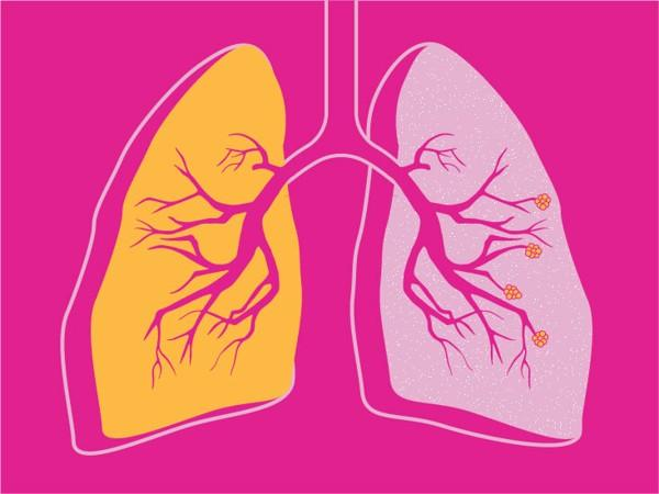 COPD-Wellbeing