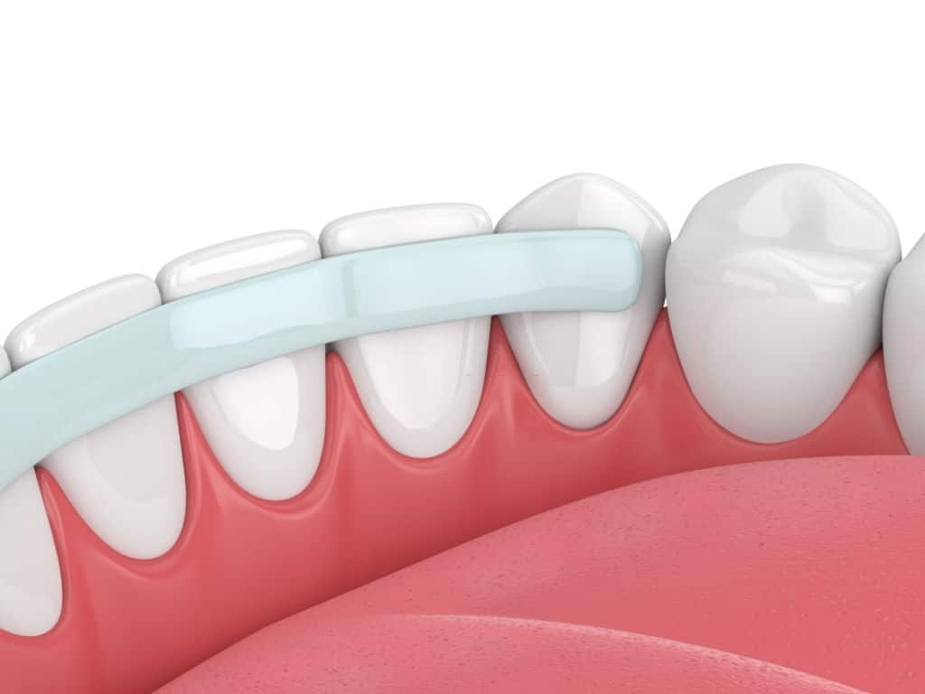 Bonding of teeth help to get rid of tooth gaps, and cracking.
