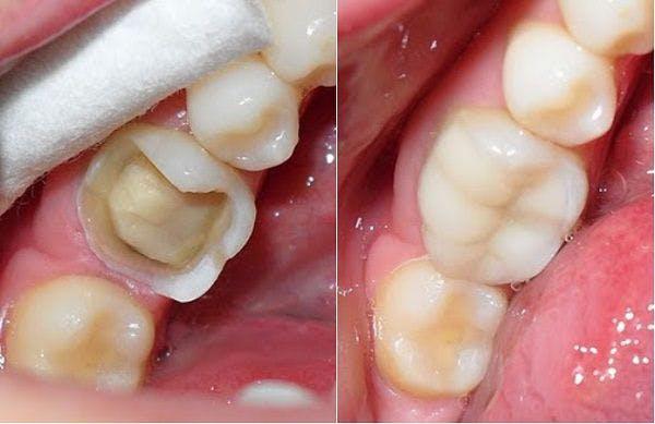 Răng sứ cercon có tốt không phụ thuộc vào yếu tố nào? 1