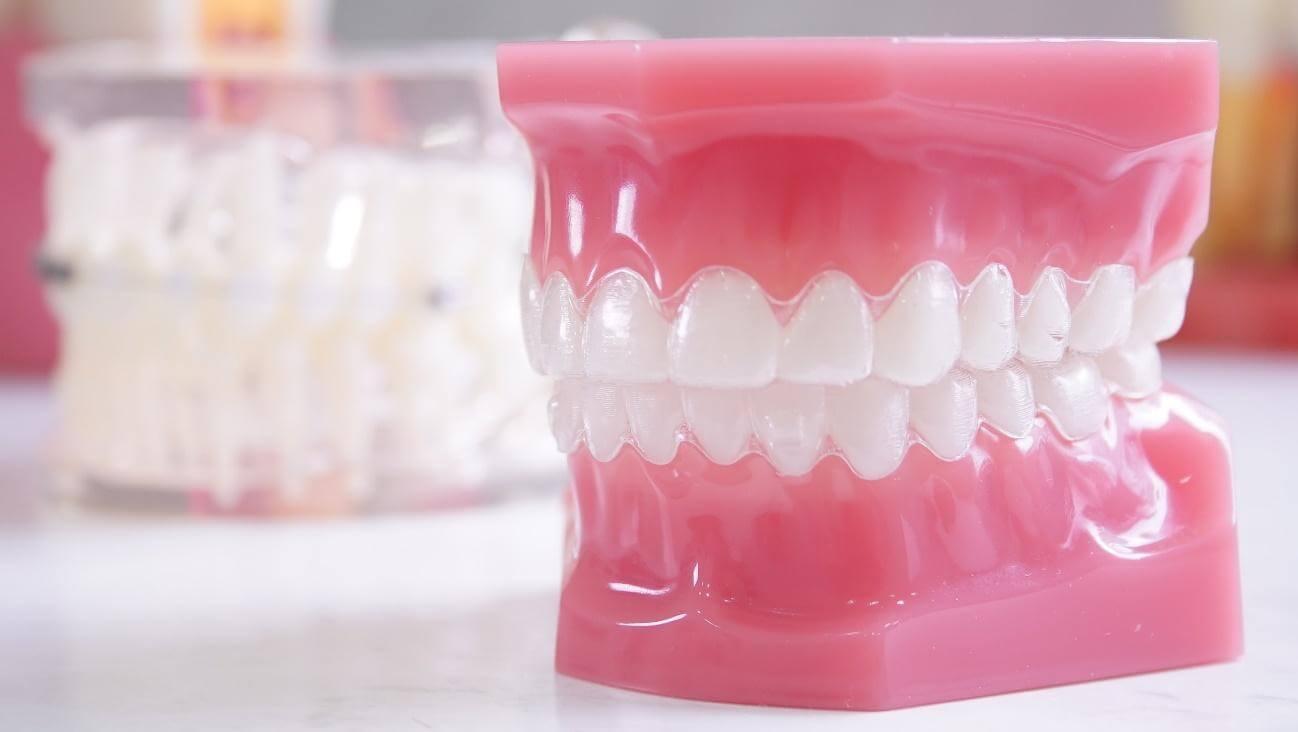 Alinhador dental invisível - Allegra Odontologia