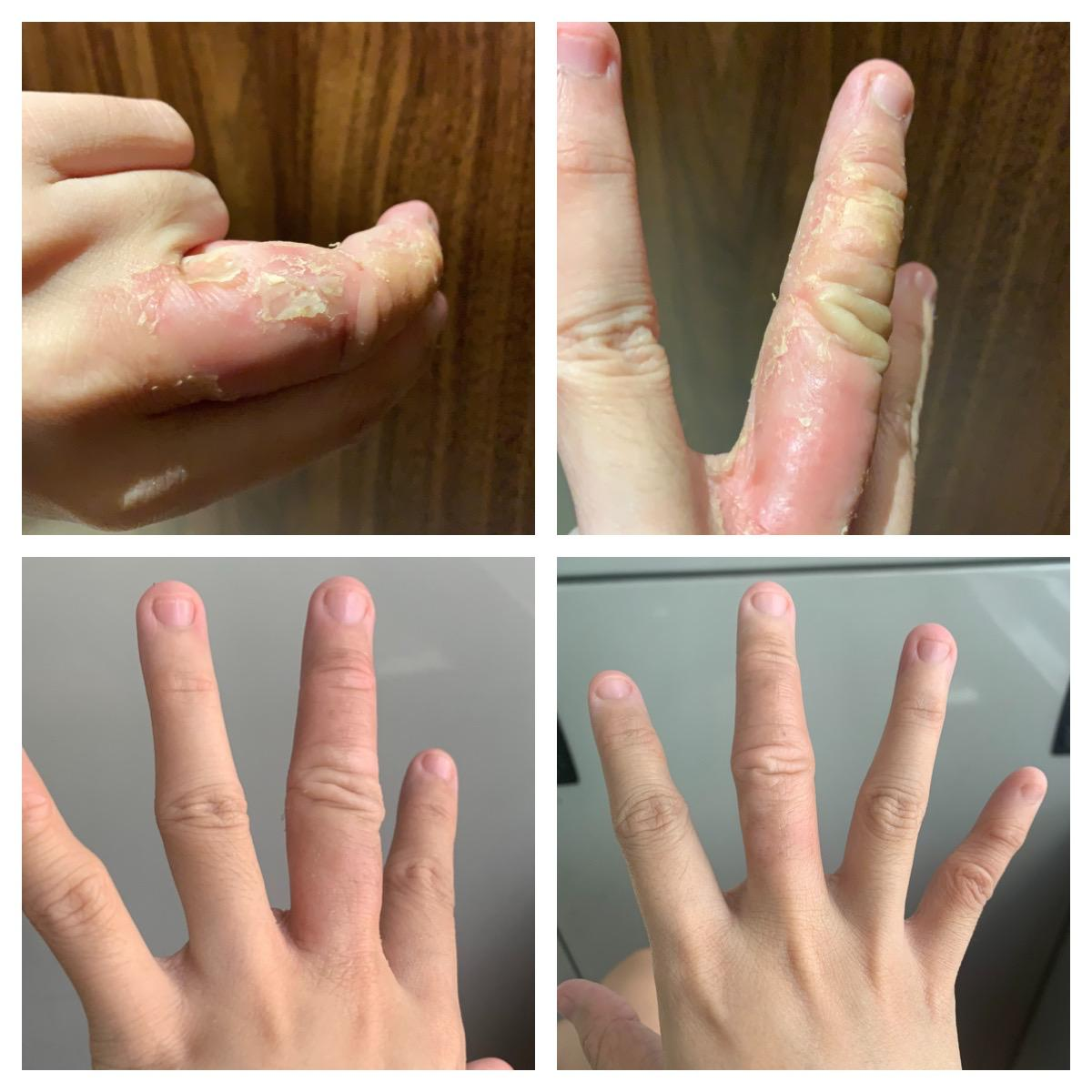 Eczema before and after using Omega369 emu oil and Kakadu Ointment. The bottom image shows that her skin redness has gone down, her skin has stopped flaking and peeling, and swelling appears visibly reduced.