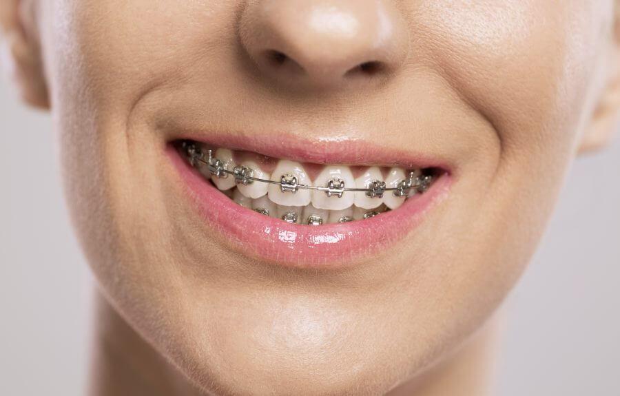 Niềng răng hàm trên bao nhiêu tiền rẻ nhất tháng 6 - 2018
