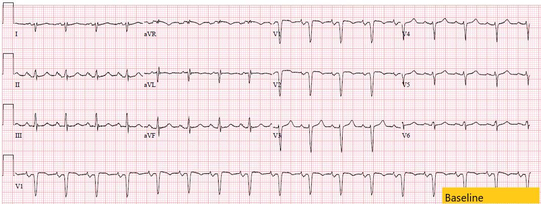 Baseline ECG for hyperkalemia