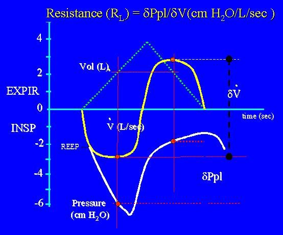 Pulmonary resistance is measured here using the iso-volume method.