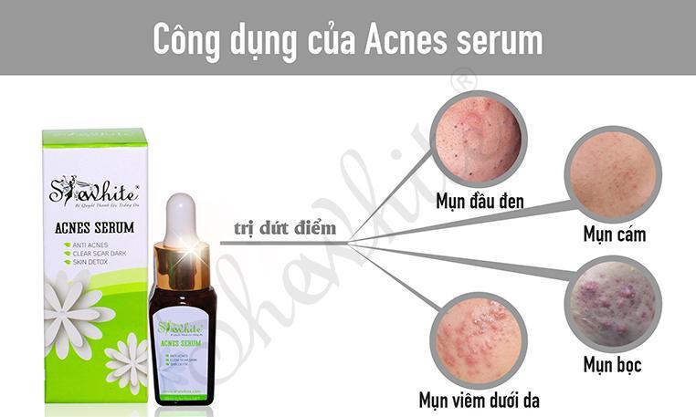 C:\Users\lBan\Documents\Kinh tế hàn quốc\cong-dung-acnes-serum-02e91cb4-1d18-4ce4-8e01-62d5a62280bb-f76eee83-9e16-4511-bb99-1bf025d9e438.jpg