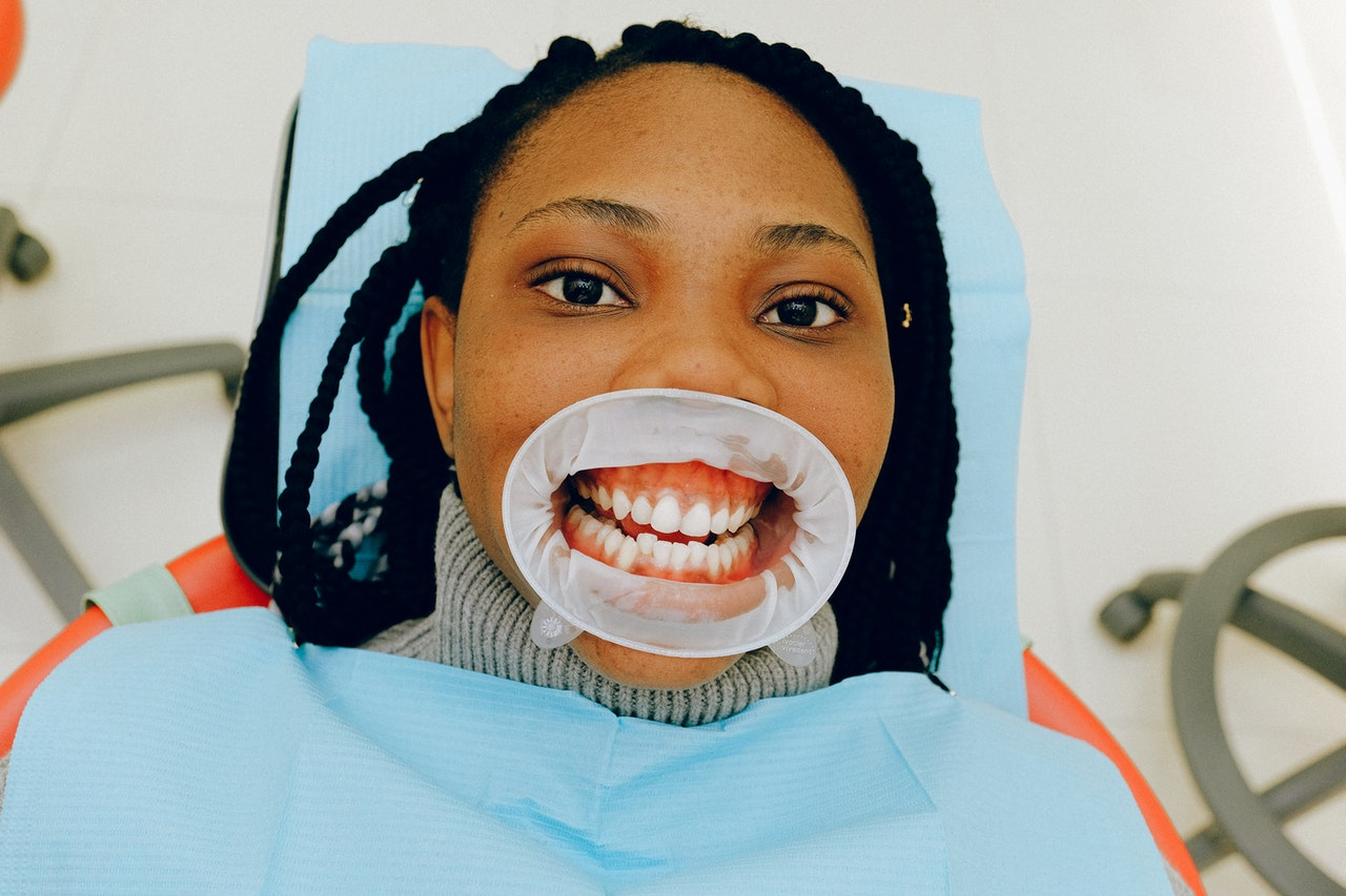 Before-and-After Dental Photos