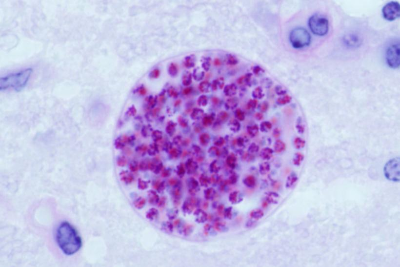 toxoplasma cyst full of bradyzoite